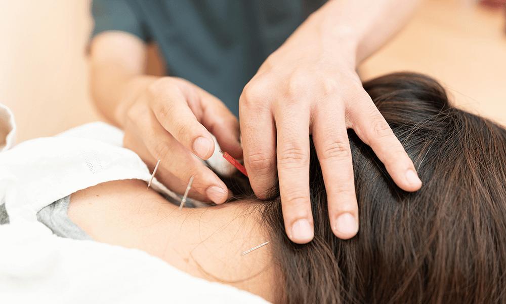 郡山市で鍼治療は、生田接骨院